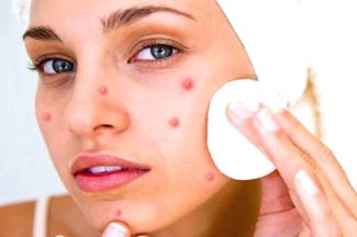 pimples2.jpg