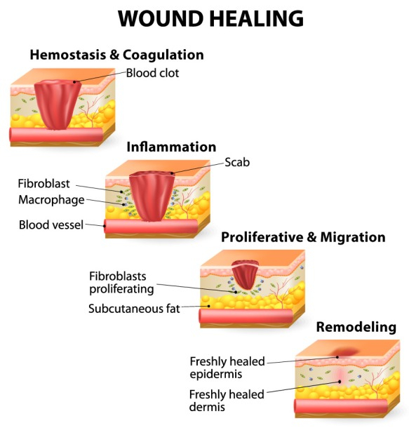 Wound Care Dimensional Dermatology