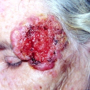 basal_cell_carcinoma_temple_gg_sq234