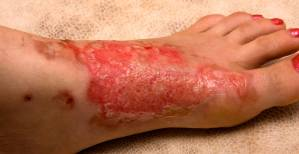 burn-severity