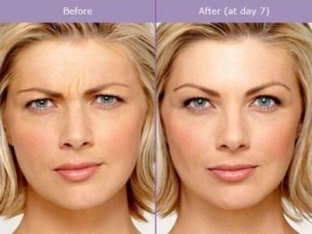 Botox-1
