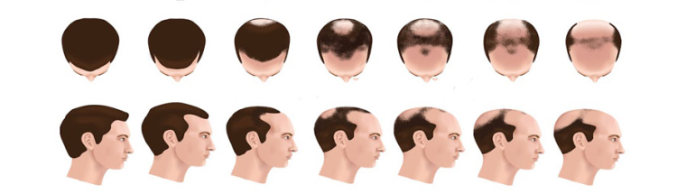 hair-loss-progress-men.png