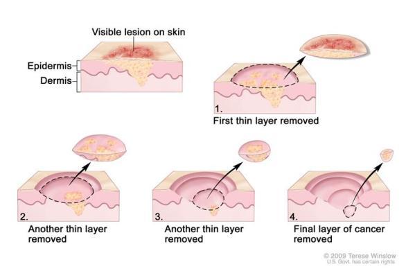 mohs-micrographic-surgery.jpg