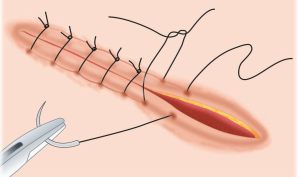 suturing-techniques-md-pulp