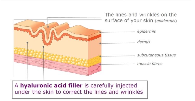 fillers-smooth-wrinkled-skin-1.jpg