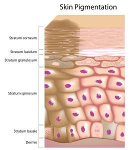 causes-of-skin-pigmentation