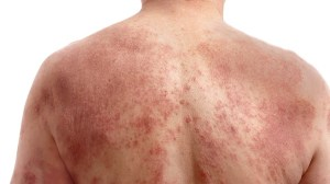 eczema_types_english