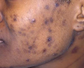 post_inflammatory_hyperpigmentation_2
