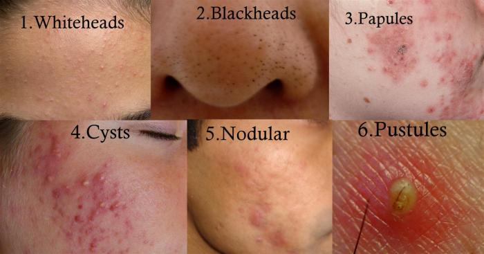 how-to-treat-whitehead-blackhead-popules-cystic-nodular-and-pustules-acne