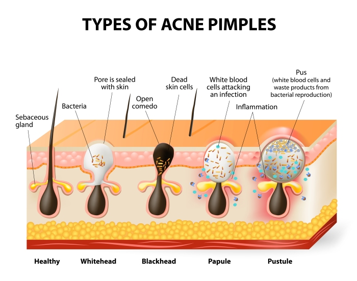 Types of acne pimples