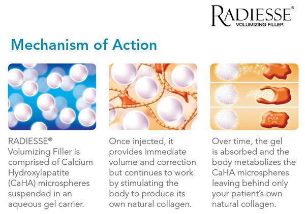 radiesse-mechanism.jpg