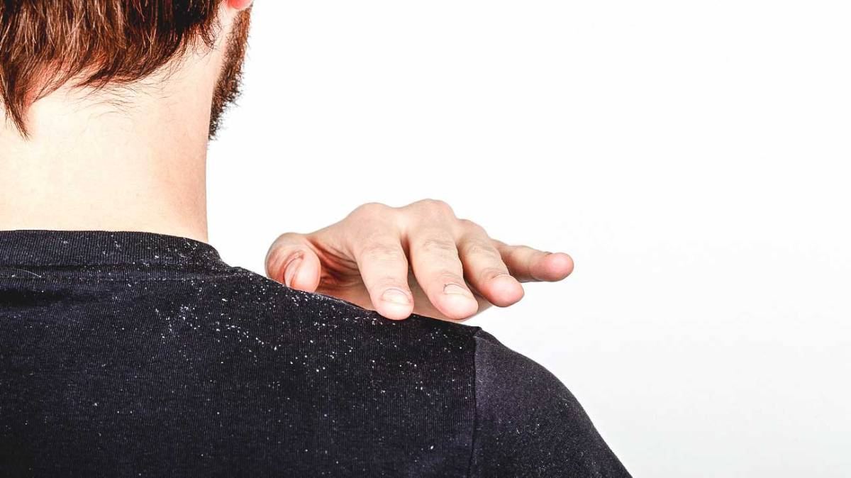 Dandruff: A Frustrating Yet Treatable Problem