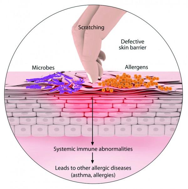 03-atopic-dermatitis-scratch-causes-e1456186249572