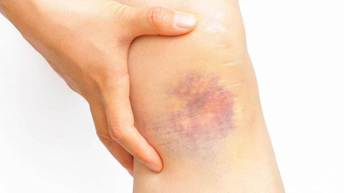 Bruising: Our Little Secret