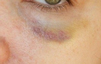 bruising-easily