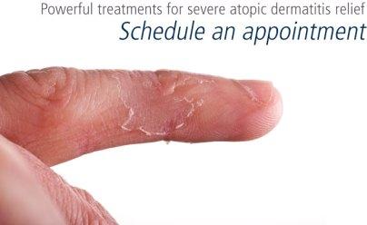 dermatitis-atopic-eczema2