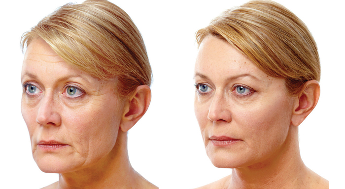 soft-lift-before-and-after-9.jpg