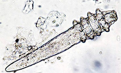 demodex(1)