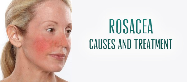 rosacea-causes-and-treatment.jpg