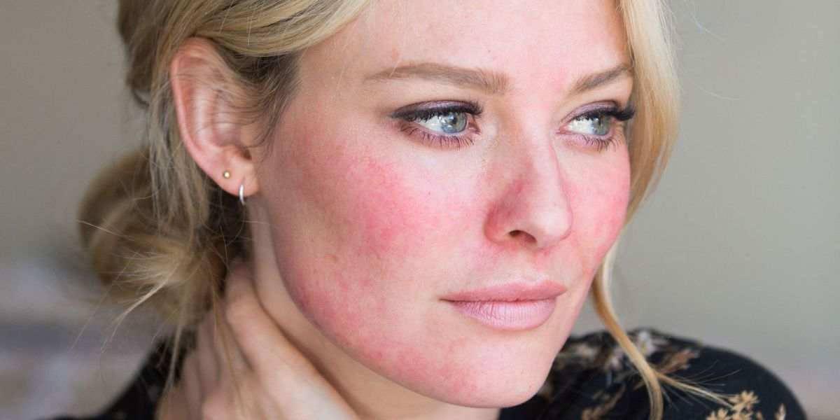 Rosacea: The Adult Acne Mimicker
