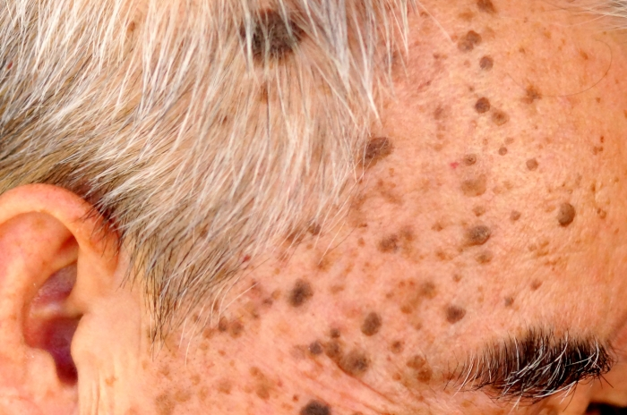 what_is_seborrheic_keratosis