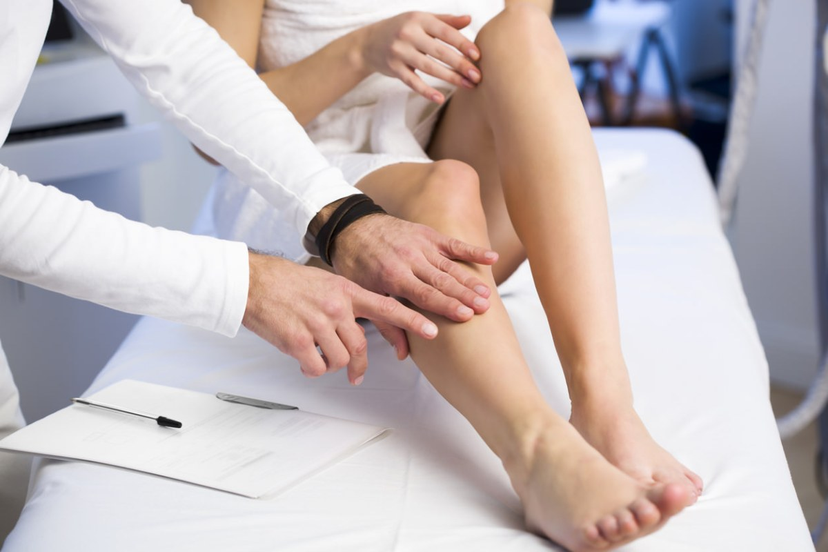 Sclerotherapy: A Solution to Eliminate Spider Veins
