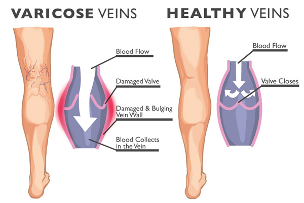 Varicose-Veins-2-1.jpg
